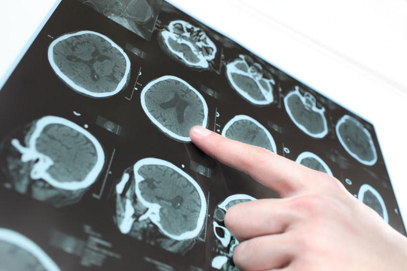 Intel i Fundacja Michaela J. Foxa chcą wyleczyć chorobę Parkinsona /123RF/PICSEL