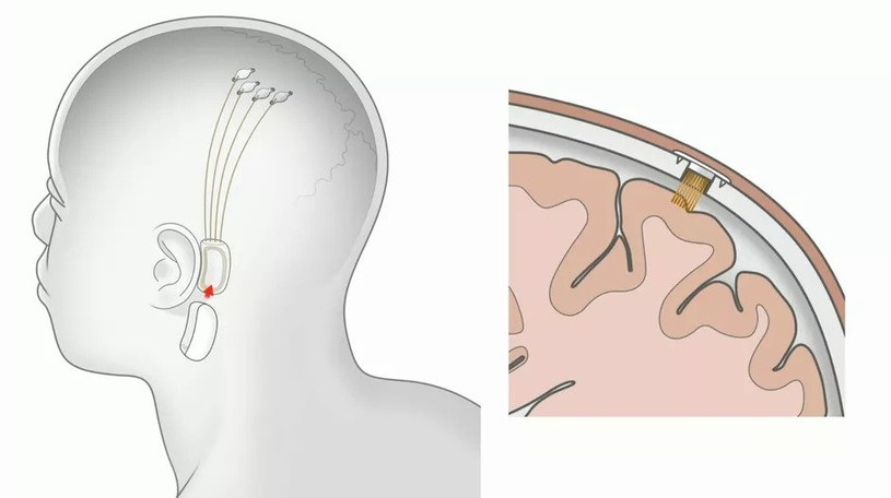 Interfejs mózg-komputer od Neuralink /materiały prasowe