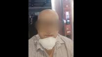 """""""Interwencja"""": Zgolił brwi i włosy, by zbierać na rzekome leczenie. Rzesza oszukanych"""