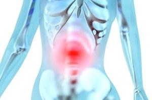 Istnieją 4 podtypy raka jelita grubego