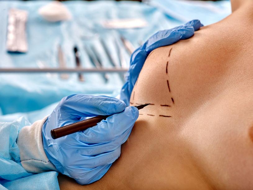 Istnieje kilka możliwości operacji odtwórczej piersi. Pamiętaj, że żaden chirurg nie dorówna naturze /123RF/PICSEL