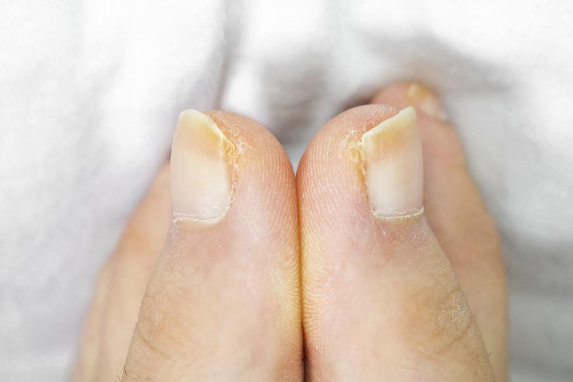 Istnieje wiele sposobów na pozbycie się żółtego odcienia z paznokci /123RF/PICSEL