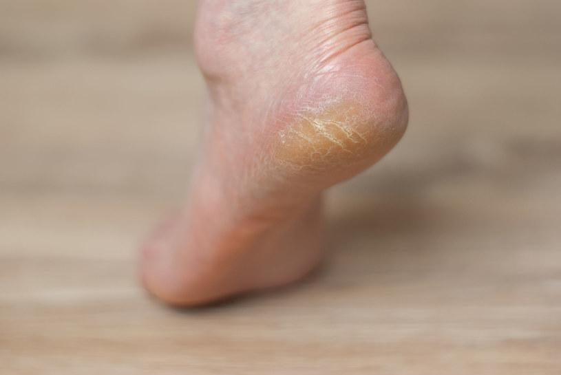 Istnieje wiele sprawdzonych, domowych sposobów na gładkie i piękne stopy /123RF/PICSEL