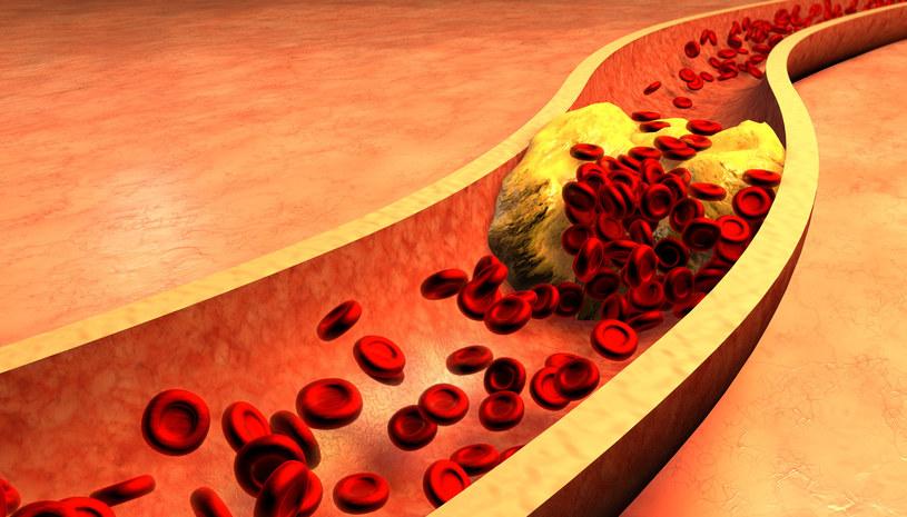 Jagody goji wykazują właściwości obniżające poziom złego cholesterolu /123RF/PICSEL