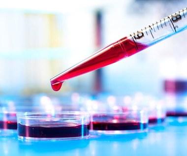 Jak często trzeba badać krew?