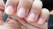 Jak dbać o popękaną skórę dłoni?