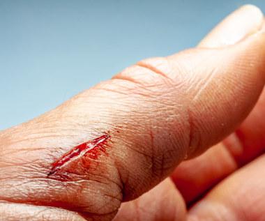 Jak dezynfekować rany?