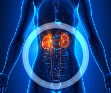 Jak domowymi sposobami obniżyć poziom kwasu moczowego?