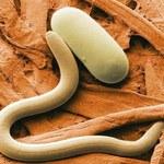 Jak efektywnie pozbyć się pasożytów z organizmu?
