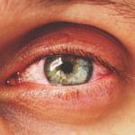 Jak kolor oczu wpływa na choroby narządu wzroku?