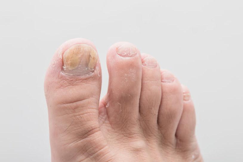 Jak leczyć grzybicę paznokci? /©123RF/PICSEL