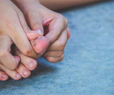 Jak leczyć naderwany paznokieć?