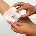 Jak leczyć powierzchowne rany cukrem?