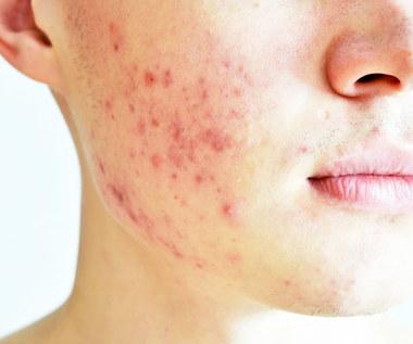 Jak leczyć trądzik na ciele i twarzy?