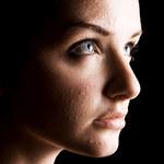 Jak leczyć trądzik po 30. roku życia