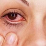 Jak leczyć zapalenie spojówek?