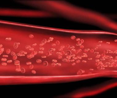 Jak naturalnie oczyścić tętnice?