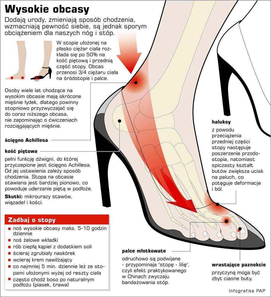 Jak obcasy wpływają na stopy? /Infografika /PAP