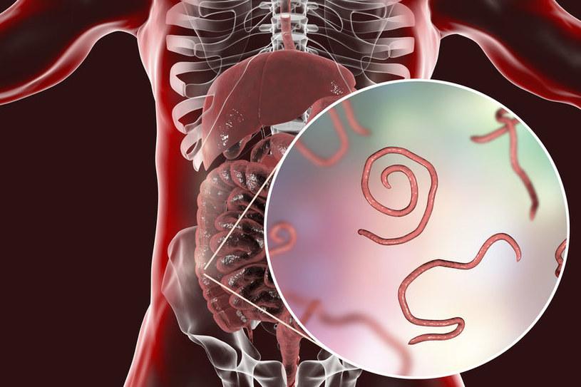 Jak objawiają się choroby pasożytnicze? /©123RF/PICSEL