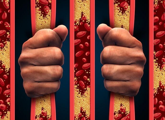 Jak oczyścić tętnice? /©123RF/PICSEL
