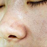 Jak oczyścić twarz domowymi sposobami?