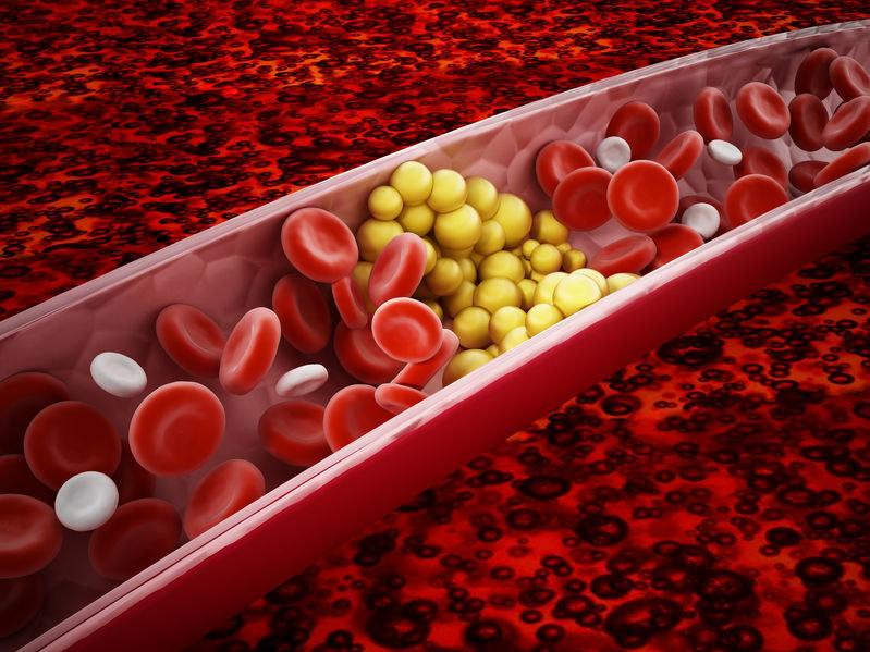 Jak oczyścić żyły z cholesterolu? /©123RF/PICSEL