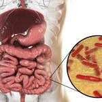 Jak odbudować florę bakteryjną jelit?