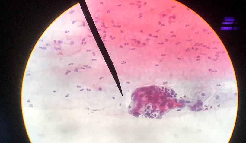 Jak odczytywać wynik cytologii? /123RF/PICSEL
