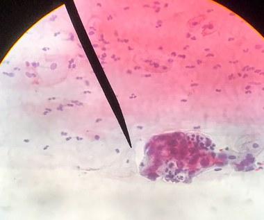 Jak odczytywać wyniki cytologii?
