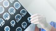 Jak oszukuje nas własny mózg