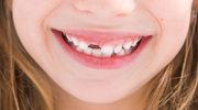 Jak pielęgnować zęby u dzieci?