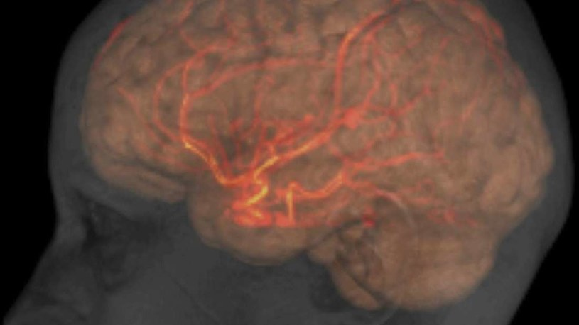 Jak pokonać chorobę Alzheimera? /materiały prasowe