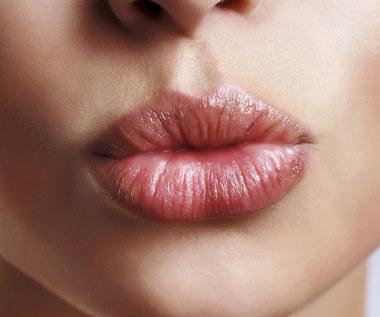 Jak poradzić sobie z popękanymi i spierzchniętymi ustami?