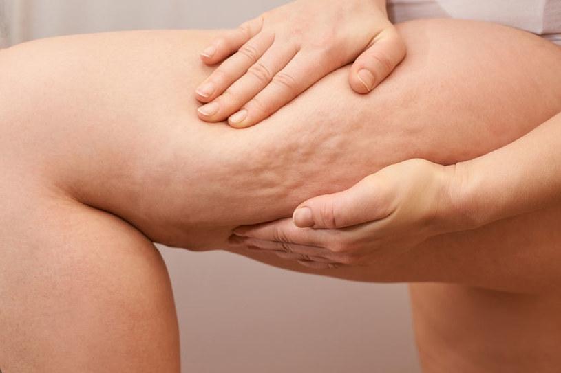 Jak pozbyć się cellulitu z ud? /©123RF/PICSEL