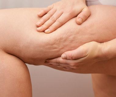 Jak pozbyć się cellulitu z ud?