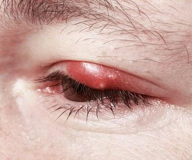 Jak pozbyć się gradówki na oku?