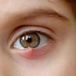 Jak pozbyć się jęczmienia z oka?