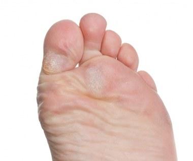 Jak pozbyć się modzeli ze stóp?