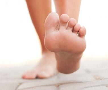 Jak pozbyć się opuchlizny nóg za pomocą jodyny?