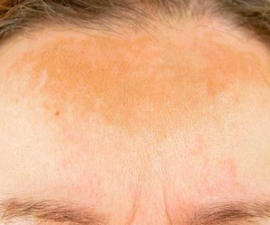 Jak pozbyć się przebarwień na skórze? Sprawdzone sposoby