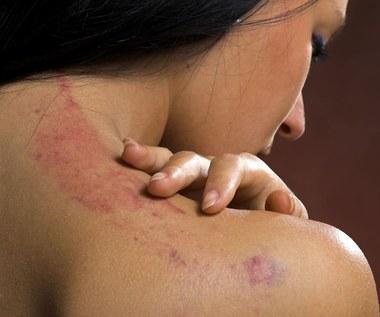 Jak pozbyć się siniaków ze skóry? Sprawdzone sposoby