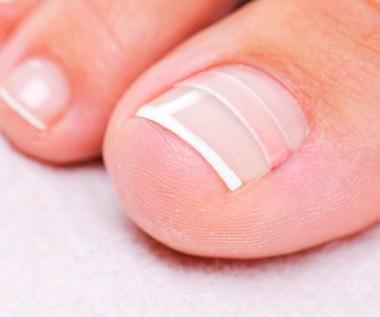 Jak pozbyć się wrastających paznokci?