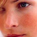 Jak pozbyć się zaczerwienienia na twarzy?