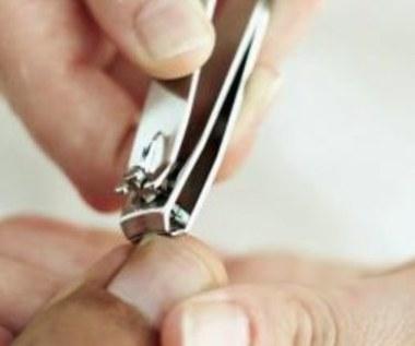 Jak prawidłowo zmiękczyć paznokcie u stóp?