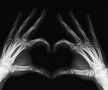 Jak przyspieszyć zrost kości po złamaniu?
