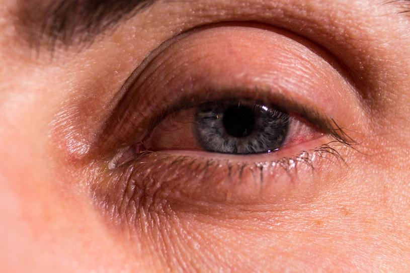Jak radzić sobie z opuchlizną oczu? /123RF/PICSEL
