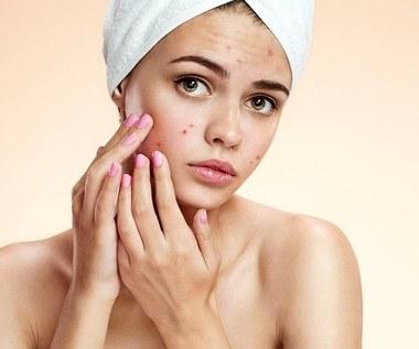 Jak radzić sobie z trądzikiem hormonalnym?