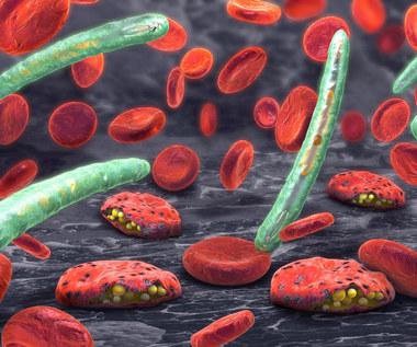Jak rozpoznać chorobę pasożytniczą?