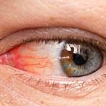 Jak rozpoznać cyfrowe zmęczenie oczu?