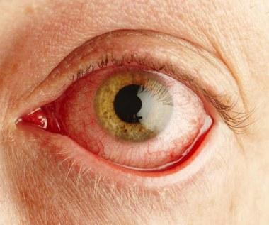 Jak stosować świetlik łąkowy w leczeniu infekcji i chorób oczu?